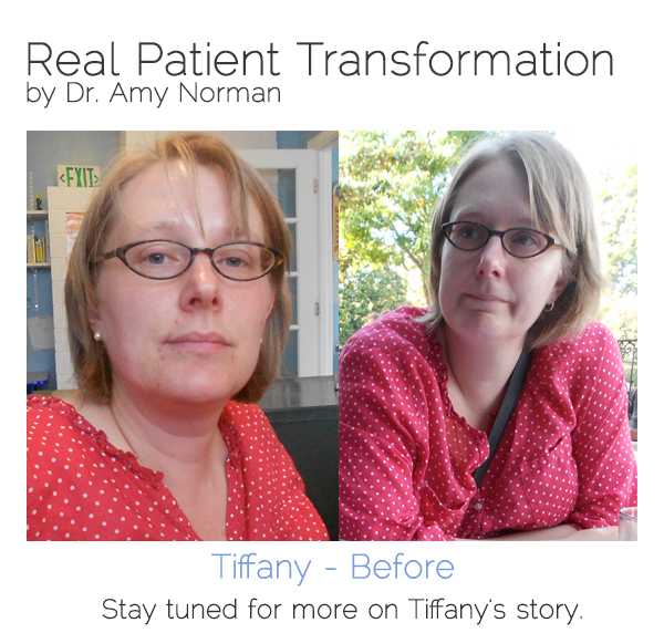 Patient Transformation - Tiffany