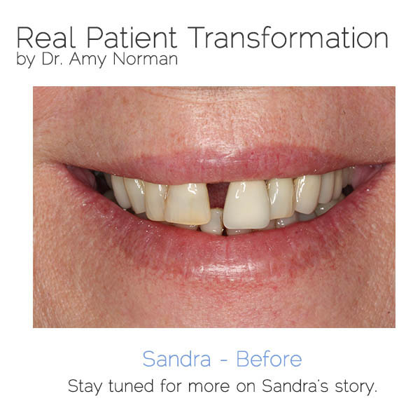 Patient Transformation - Sandra