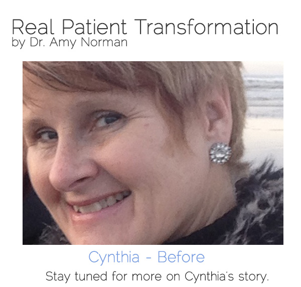 Patient Transformation - Cynthia