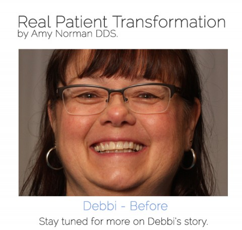 Patient Transformation: Debbi