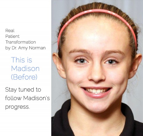 Patient Transformation: Madison