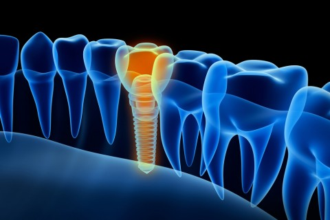 New Research May Reduce Dental Implant Failures