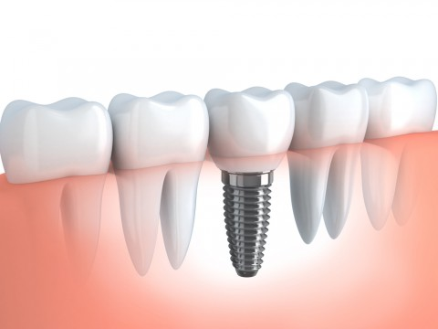 The Stages of the Dental Implant Process