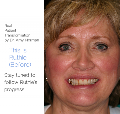 Patient Transformation - Ruthie