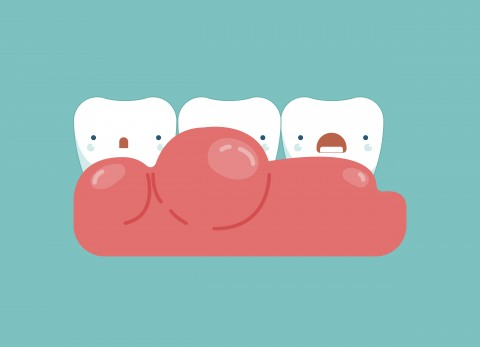 The Four Stages of Gum Disease