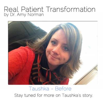 Patient Transformation - Taushka